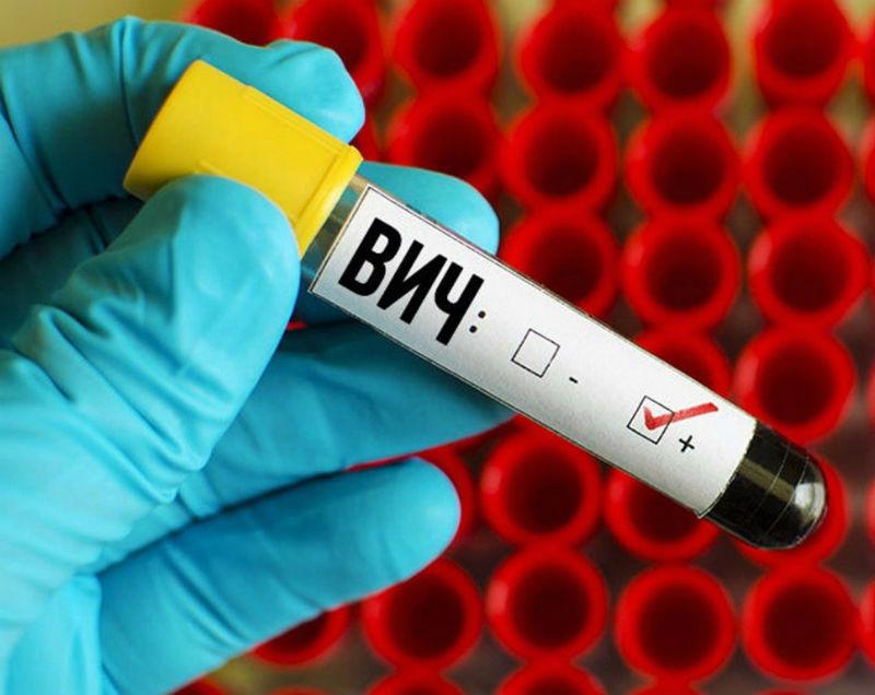 Приезжающих в Омск будут тестировать на ВИЧ #Омск #Общество #Сегодня